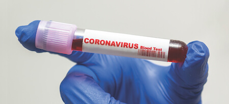 Coronavirus covid 19 test tube label